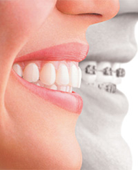 Invisalign in Raleigh, NC